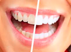 Dentists North Oaks MN
