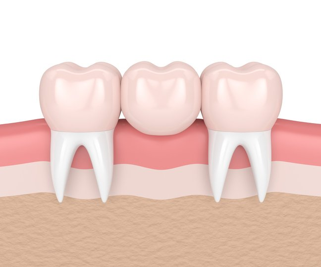Dentists in Shoreview Minnesota